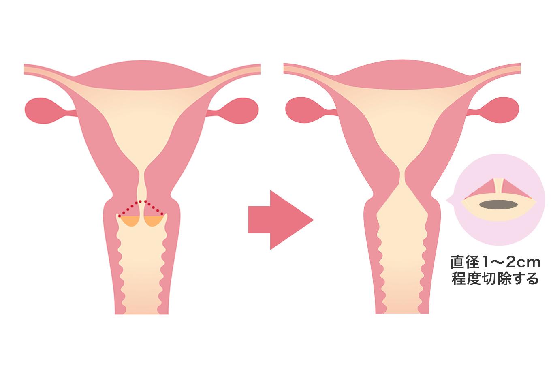 【画像】子宮頸部円錐切除術のサンプル