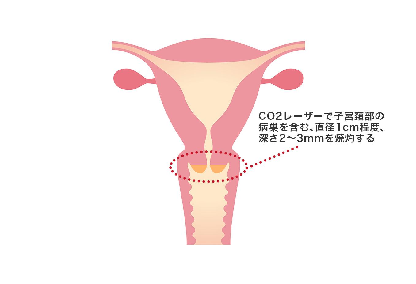 【画像】子宮頸部レーザー蒸散術のサンプル